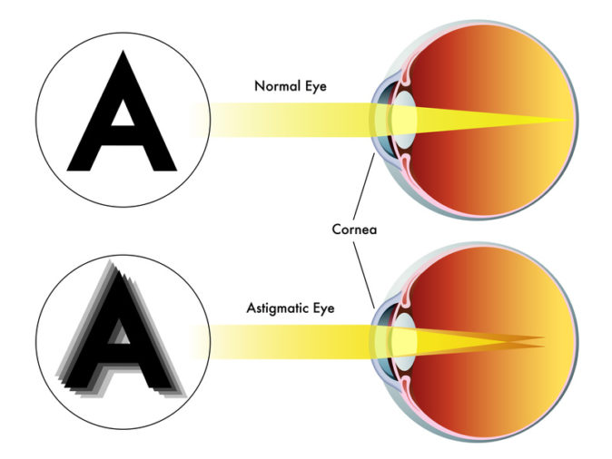 astigmat testi
