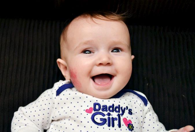 bebeklerde göz kapağı düşüklüğü