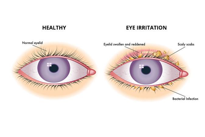 blefarit göz iltihaplanması