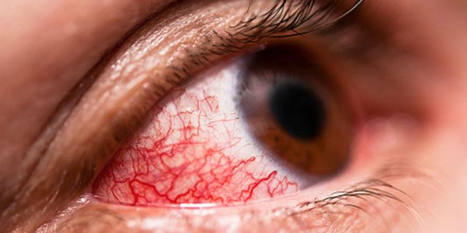 göz iltihabı iyileşme süreci nasıl hızlandırılır