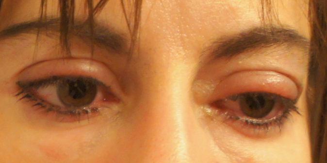 göz şişliği nasıl iner