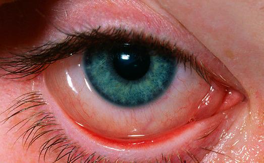 alerjik göz damlası kullanımı