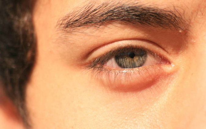 ani göz altı şişmesi riskleri