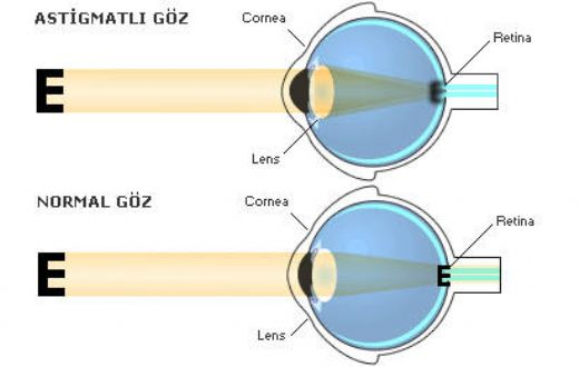 astigmat