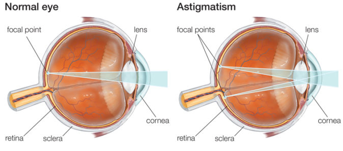 astigmatizma nedir