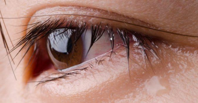 göz sulanması hangi hastalıkların habercisidir