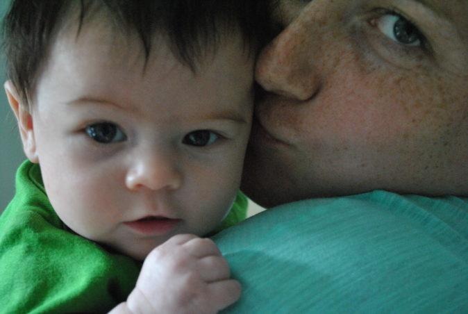 bebeklerde gözaltı morluğu