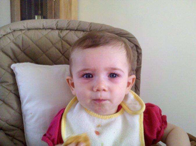 bebek göz çevresi morluğu