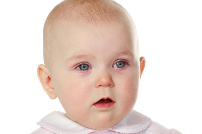 bebeklerde göz kızarıklığı neyin belirtisi