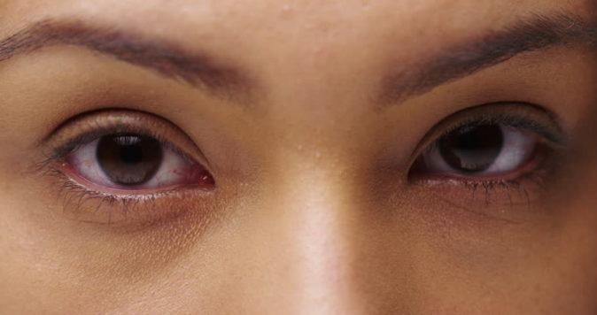 göz altı morluğu nasıl geçer