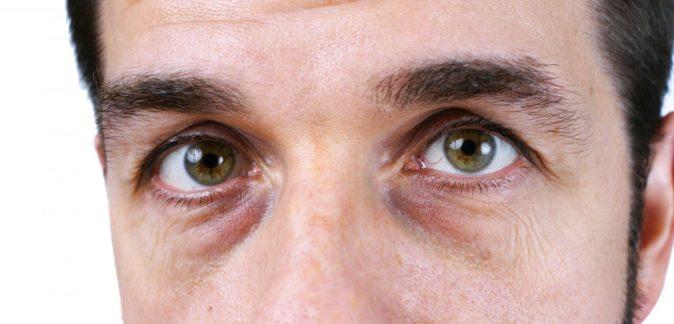 erkeklerde göz altı morlukları tedavisi