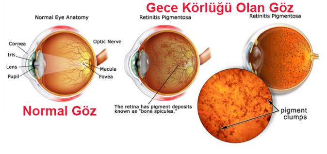 gece körlüğü anatomisi