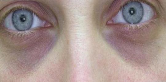 Göz Altı morlukları nasıl kapatılmalı