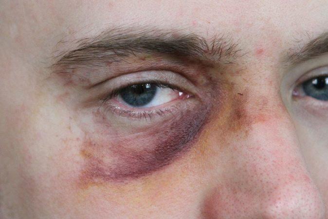 göz ağrısı ve morluk nasıl geçer