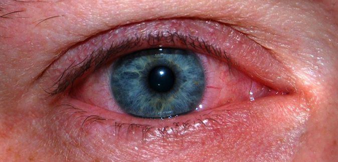 göz ağrısı evde tedavi