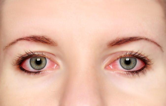 göz alerjisi sebepleri
