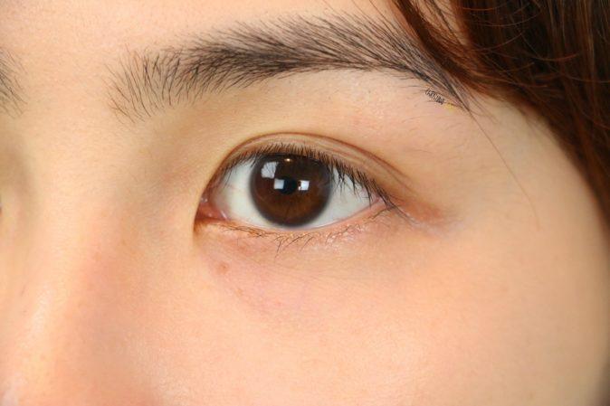 göz altı morluğu ameliyatı