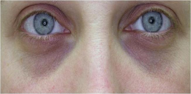 göz altı morlukları için estetik operasyon