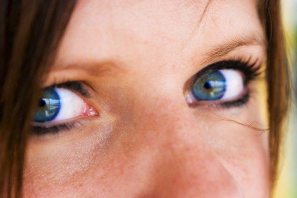 göz altı morlukları hastalık belirtisi mi