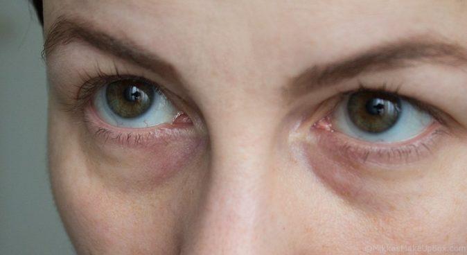 göz altı morlukları için hangi doktora gitmeliyiz