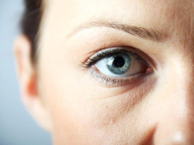 göz altı torbalarına lazerle tedavi
