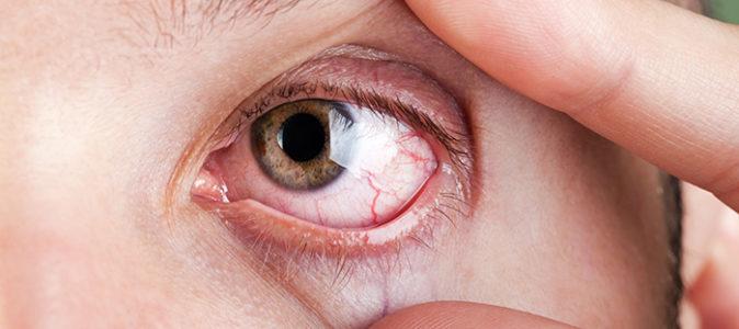 göz arkasındaki ağrının sebepleri