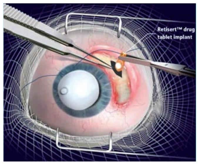 göz iltihabı tedavisi retisert