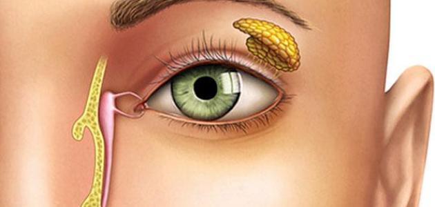 göz kanalı tıkanıklığı ameliyati