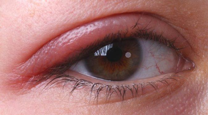 göz kapağı iltihabı nasıl geçer