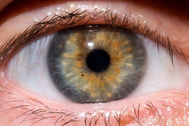 göz kayması tedavisi