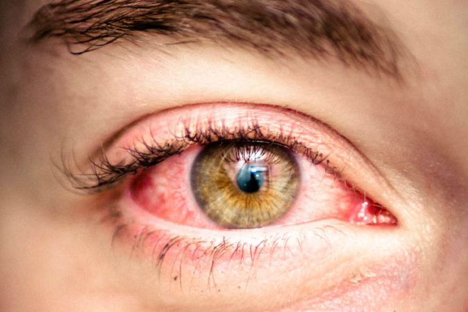 göz kızarıklığı nedenleri