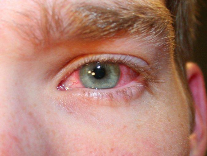göz kızarıklığı tedavi