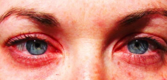 göz kırmızılığı