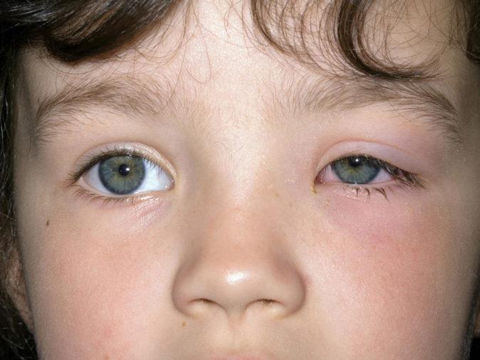 göz şişliğinin sebepleri