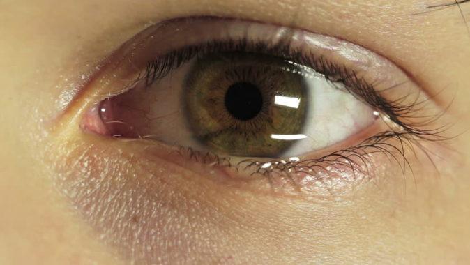 göz sulanması tedavisi