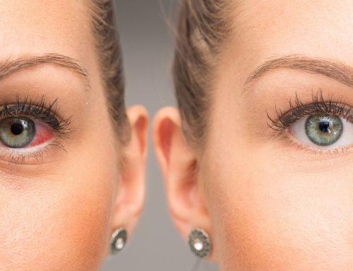 Göz tansiyon testleri