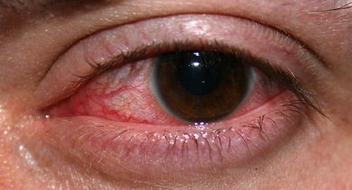 göz tembelliği için engelli raporu oranları