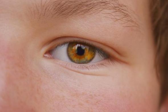 göz yanması sebepleri