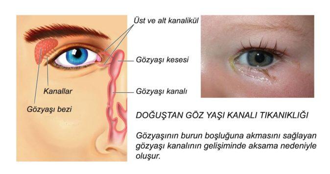 göz yaşı kanalı tıkanıklığı