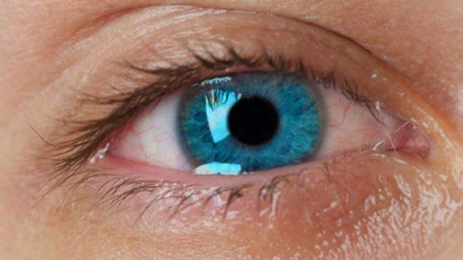 gripte göz sulanması nasıl geçer