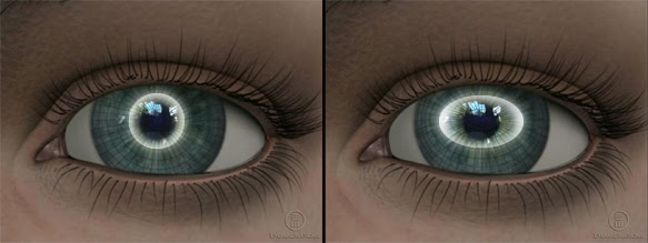 astigmatizma