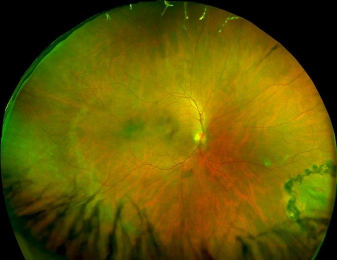 Retina dekolmanı nedir ve nasıl ortaya çıkar