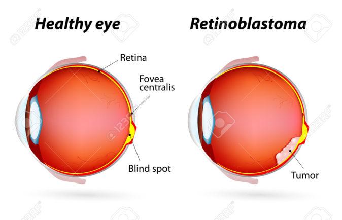 retinoblastoma neden olur