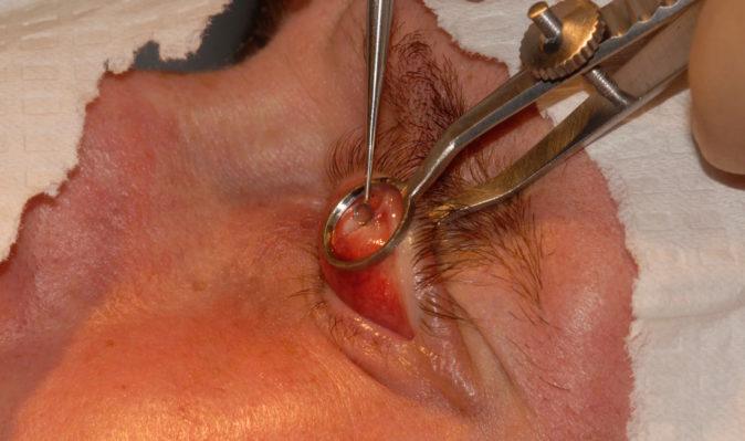 şalazyon ameliyatı nasıl yapılır