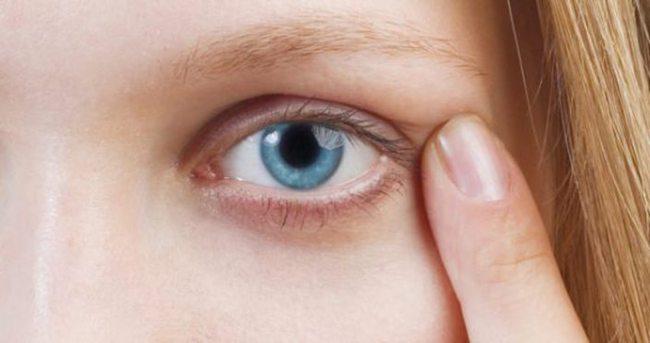 sol göz ağrısı