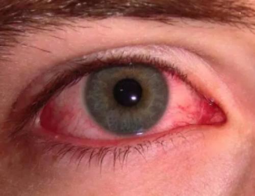 göz kanaması bir hastalık belirtisi mi